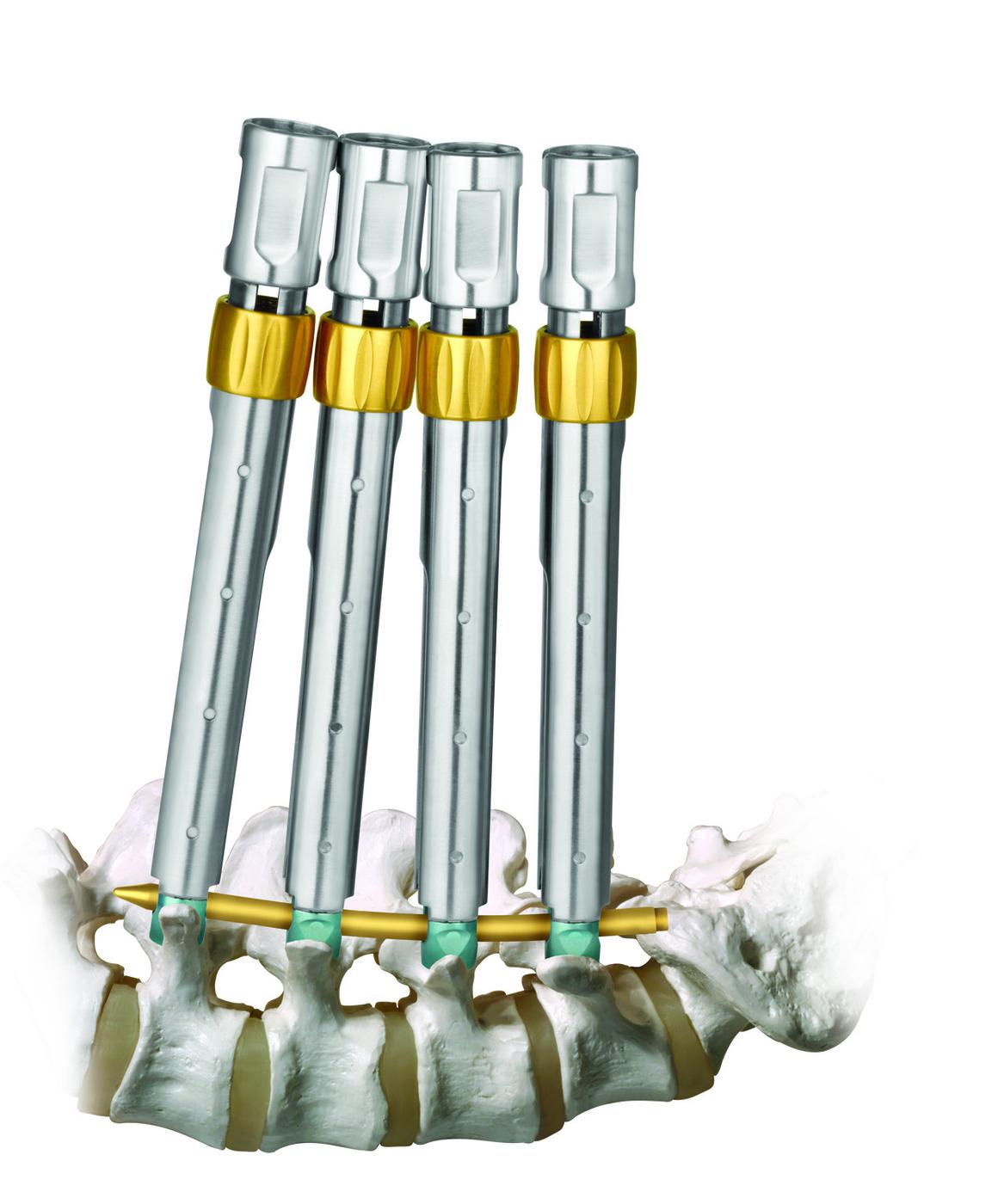 REVOLVE®- Sistema de Estabilização Minimamente Invasivo