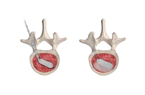 SHIELD™: Tratamento Minimamente Invasivo para Fratura Vertebral Por Compressão (VCF)