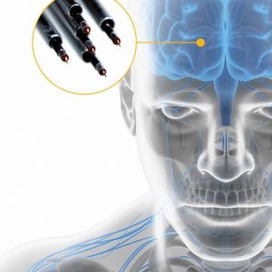 Sistema ISIS MER: Microregistro Cerebral